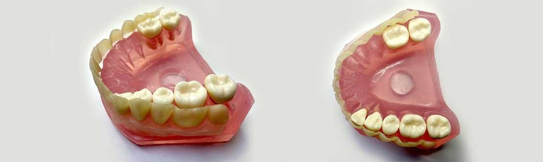 Anatomisch identisch & Ästhetisch Zahnverblendung